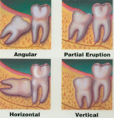 Wisdom Teeth are just another name for Third Molars, the teeth which most of us get to know between the ages of 16 to 25.